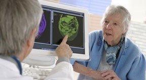 Les signes pour repérer Alzheimer